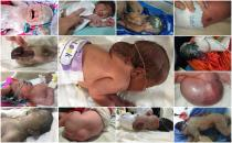 Babies born disabled because of chemical weapons used by The U.S.