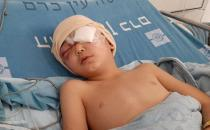 Palestinian child loses his eye after being shot by zionist gangs