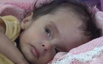 Yemen crisis is mostly affecting children
